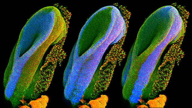 wellcome image awards 2017 b0011228 mouse embryonic posterior neuropore  conf